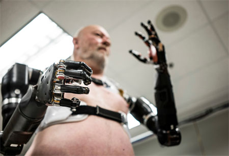 3 Most Exciting Prosthetic Technology Breakthroughs to Know
