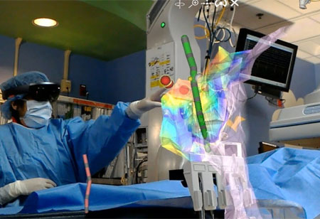 How Holographic Imaging Transforms Surgical Procedures?