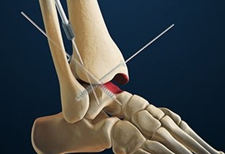 New High-Tech Solution to Address TTC and TC Arthrodesis
